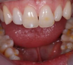 "Stained vital central incisors and generalized ""dark"" teeth."