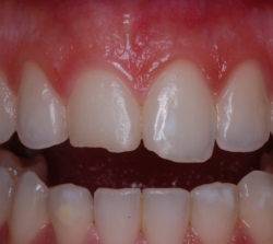 Chipped upper central incisors.