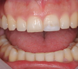 Unesthetic restoration on the upper left incisor.