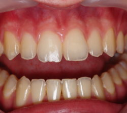 Central incisor with a chipped incisal edge due to an accident.