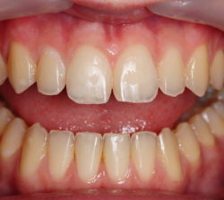 Composite restoration that efficiently restores missing tooth structure and provides the local optical effects of the incisal edge (translucency and brightness).