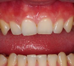 Acute shaped upper canines.