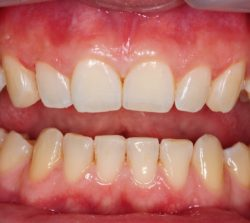 """Dramatically """"softened"""" patients smile. Reshaped canines with selective composite resin addition without hard tissue removal."""