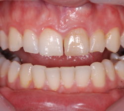 Dyschromic upper left central and lateral incisor with root canals.