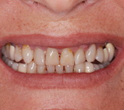 Unaesthetic appearance of upper anterior teeth