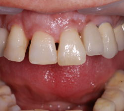 The four upper incisors present with staining, multishading, diastemas, malalignment, poor interrelationship and poor tooth-gingiva ratios.