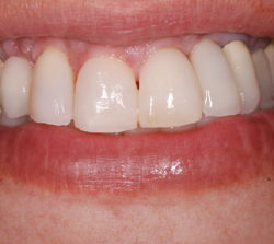 Most of the esthetic concerns of the individual teeth and their relationship with each other and the gingiva were successfully treated.