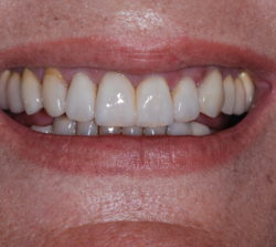 The final cemented veneers. Posterior teeth were also restored. Excellent esthetics and match with the only unprepared anterior tooth the upper right canine.