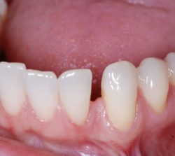 Natural lower diastema between left canine and lateral incisor.