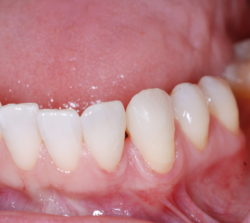 Complete diastema closure with composite resin.