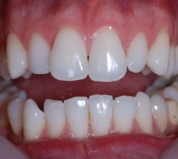 Destaining of the centrals and bleaching of all the teeth.